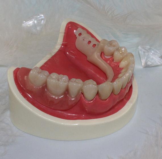Mon expertise en maintenance et prothèse dentaire est votre gage de confiance